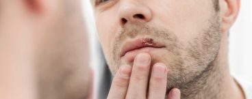 homem com herpes labial