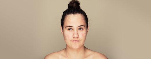 Cuidados acne