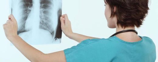 médico a examinar raio x dos pulmões
