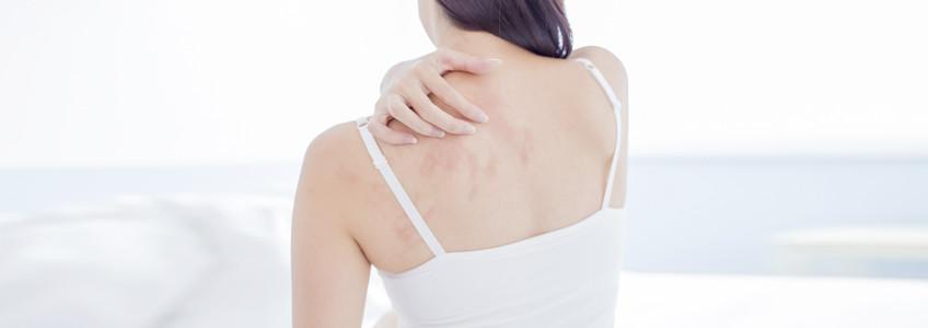 Imagem de uma pessoa com alergia nas costas