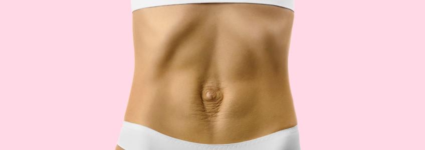 mulher com diastase abdominal
