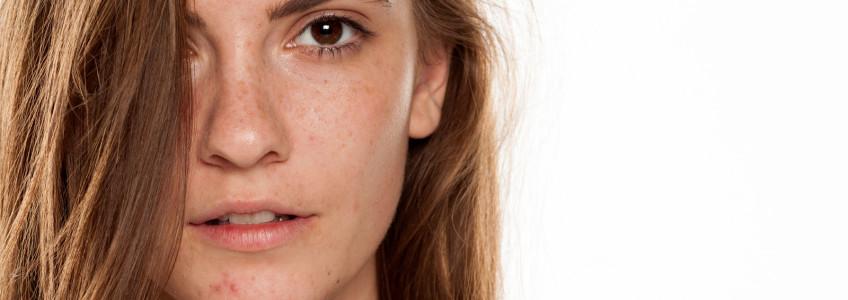 mulher jovem com manchas na cara