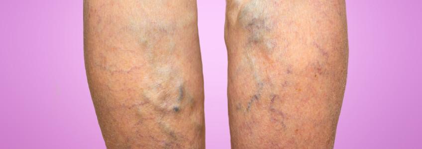 pernas de mulher com varizes